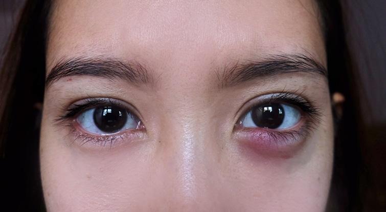 Read more about the article Mengenal Infeksi Mata dan Penanganannya yang Tepat