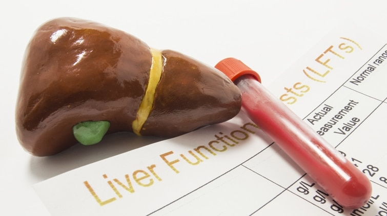 Read more about the article Mengenal Tipe Hepatitis, Penyebab, dan Cara Penanganan