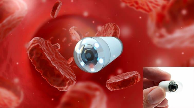 Read more about the article Cara Kerja Endoskopi Kapsul dan Manfaatnya untuk Sistem Pencernaan