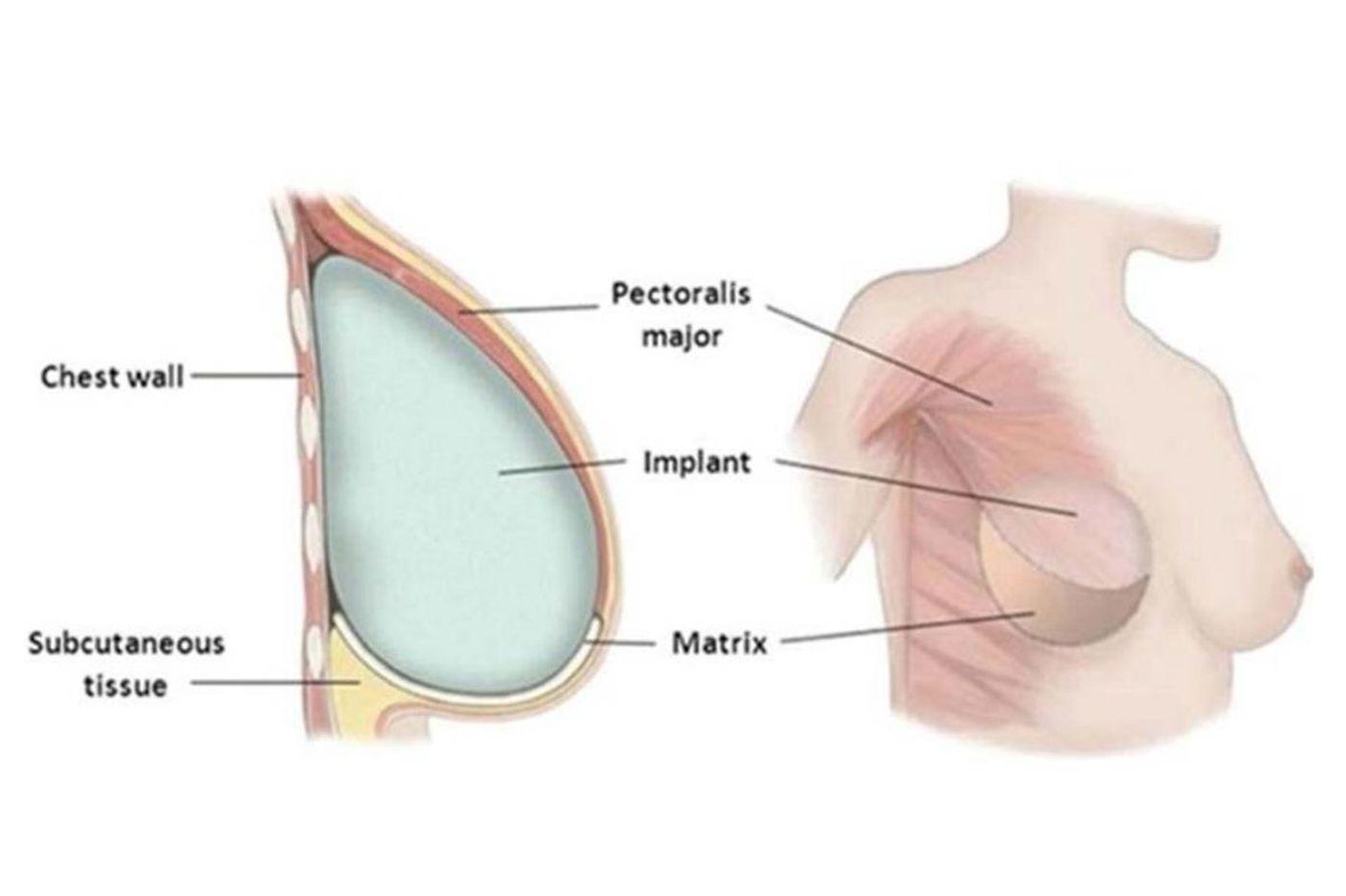 Lumpektomi dan Mastektomi, Mana yang Terbaik untuk Mengatasi Kanker Payudara? 2