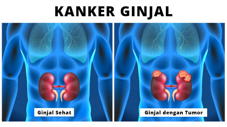 Read more about the article Kanker Ginjal: Gejala, Diagnosis, Komplikasi, dan Pengobatan