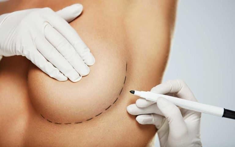 Lumpektomi dan Mastektomi, Mana yang Terbaik untuk Mengatasi Kanker Payudara? 1