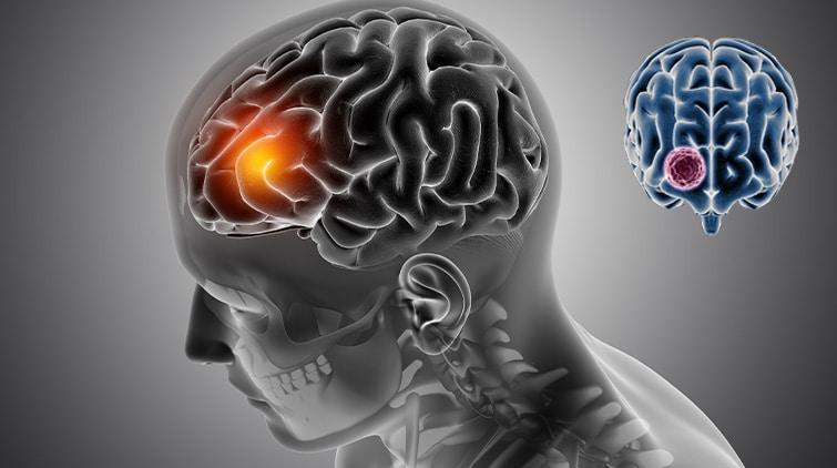 Read more about the article Tumor: Jenis, Bahaya, dan Penanganan yang Tepat