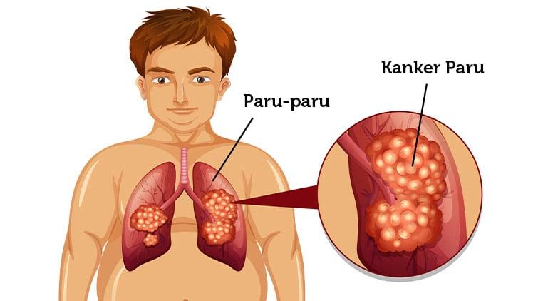 Read more about the article Komplikasi Kanker Paru yang Berbahaya untuk Kesehatan